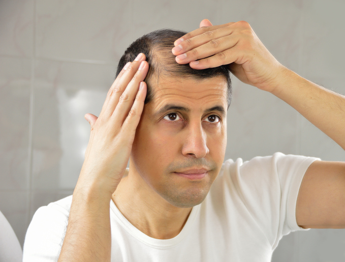 A man looks in the mirror at his thinning hair.