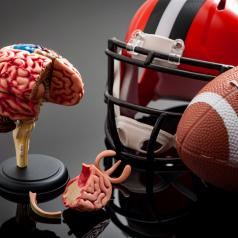 Photo shows helmet, football, and model of damaged brain on table